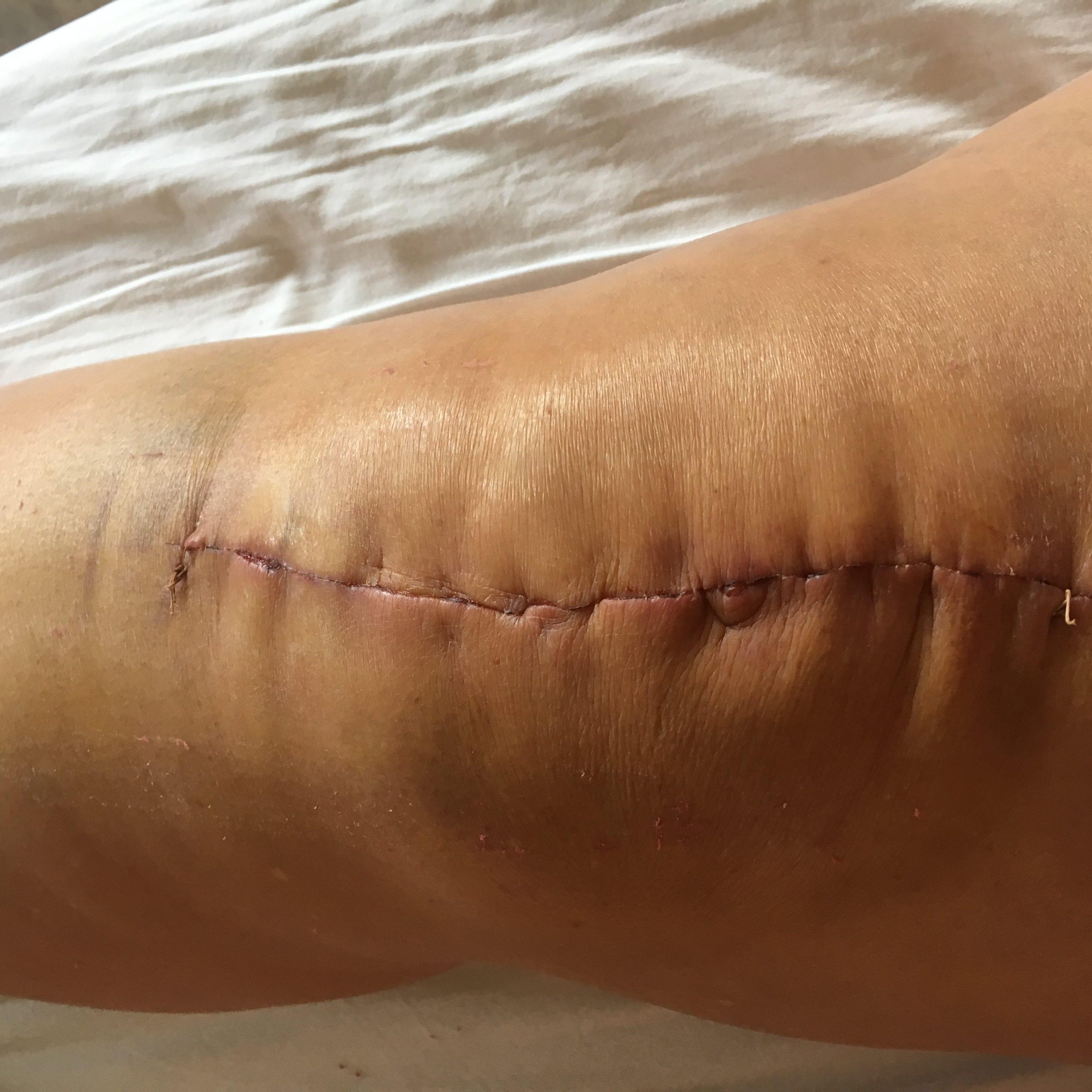 Nieuwe knie